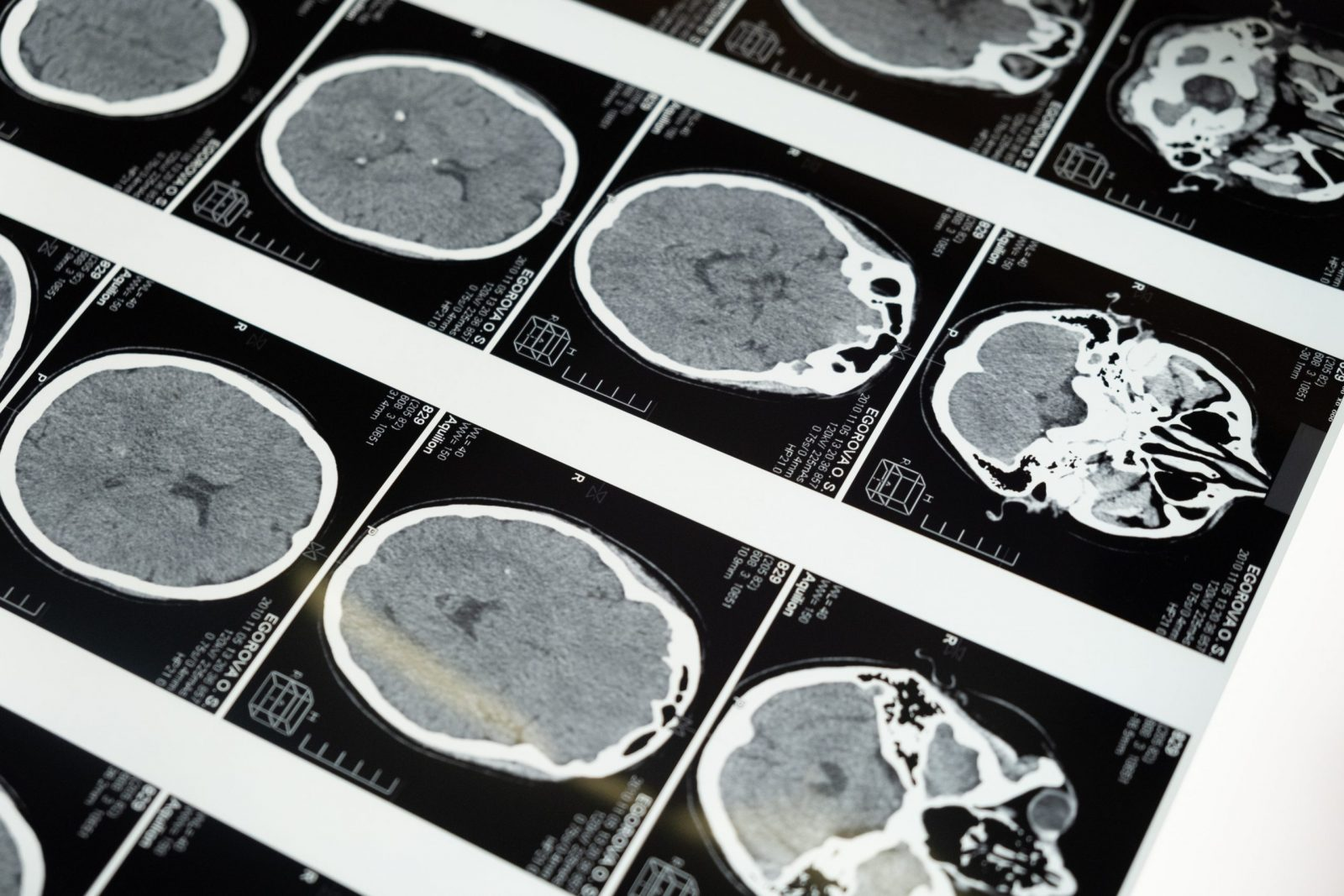 Brain scan from tbi given to brain injury lawyer